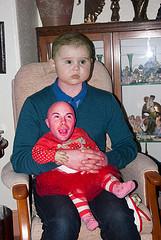 head transplant photo