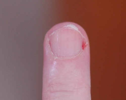 hangnail photo